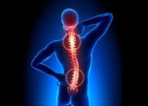 العلاجات المنزلية لآلام الظهر